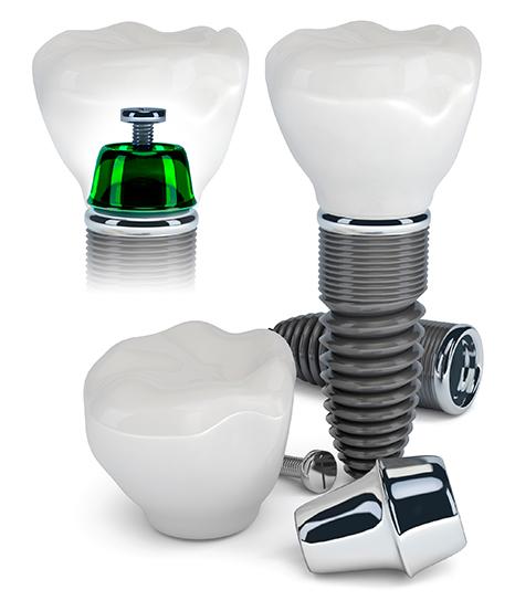Modell eines Zahnimplantats - Zahnwerk Rehbein. Ihre Zahnarztpraxis für Leipheim, Günzburg, Langenau.